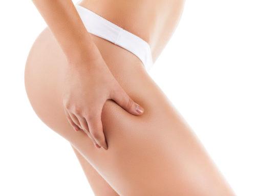 Λιπογλυπτική σώματος: Λύσεις και εργαλεία για τα αισθητικά προβλήματα του σώματος.